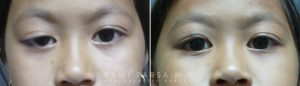 Droopy eyelid surgery (Frontalis sling)