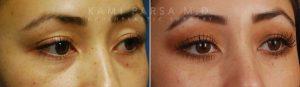 Lower eyelid blepharoplasty with chemical peel.