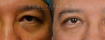 Gallery Before/After Photos | Kami Parsa MD Los Angeles, Beverly Hills