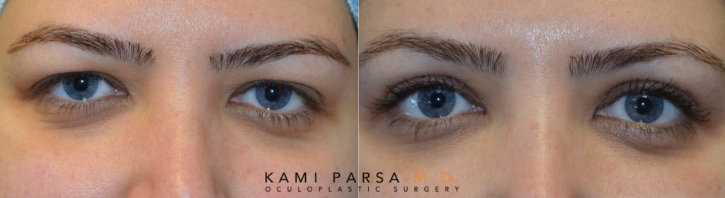 Is Cosmetic Eye Surgery Risky? Beverly Hills, CA