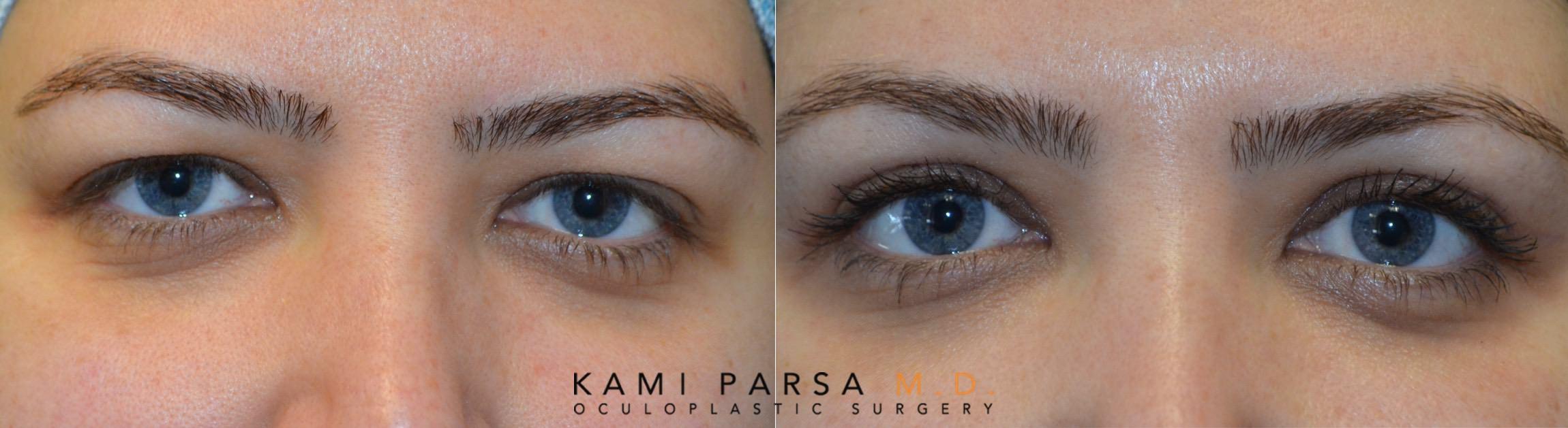 upper eyelid blepharoplasty.