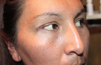 Excision of eyelid Basal Cell carcinoma with frozen