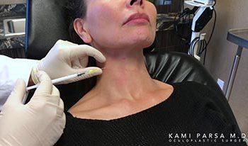 Treating Platysmal Banding With Botox