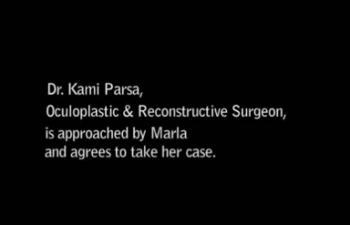 Groundbreaking Surgery - Custom Orbital Reconstruction