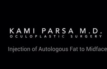 Injection of Autologous Fat to Midface
