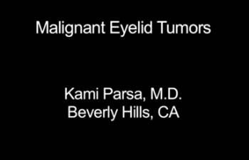 Malignant Eyelid Tumors