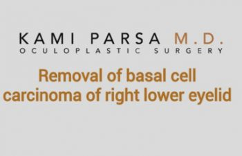 Removal of basal cell carcinoma of right lower eyelid