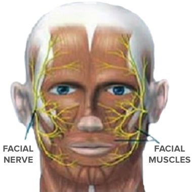 Location of facial nerves and muscles Beverly Hills, CA