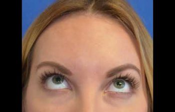 Beverly Hills CA Eyelid Surgical Treatments