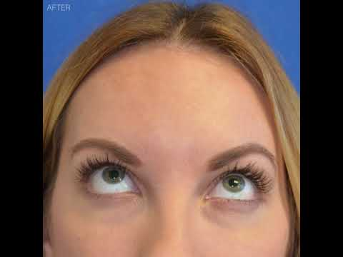 When is the Right Time for an Eyelid Lift? Beverly Hills, CA