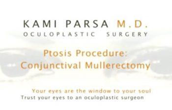 eyelid ptosis correction surgery