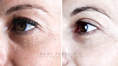 Innovations In Cosmetic Eyelid Surgery By Dr. Kami Parsa Beverly Hills, CA
