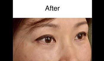 Lower Eyelid Blepharoplasty with CO2 Laser Skin Resurfacing