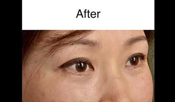 Lower Eyelid Blepharoplasty with CO2 Laser Skin Resurfacing Beverly Hills, CA