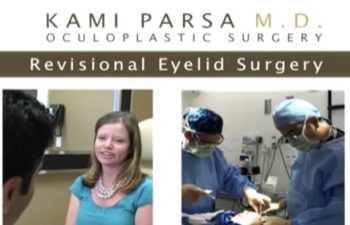 My Story - Revisional Ptosis (Droopy Eyelid) Surgery