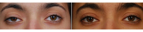 right revision ptosis before after Beverly Hills, CA