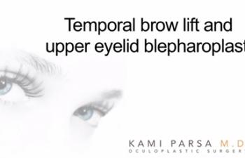 Temporal browlift & upper eyelid blepharoplasty