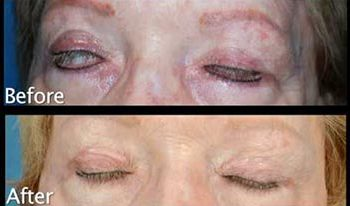 Upper Eyelid Reconstruction with Post Auricular Skin Graft