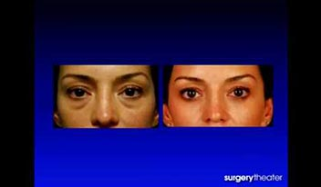 Avoiding Pitfalls in Lower Blepharoplasty Beverly Hills, CA