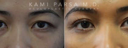 Asian eyelid surgery Before/After Photos | Kami Parsa MD Los Angeles, Beverly Hills