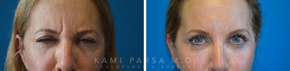 Facial Fillers and Botox - Oculoplastic Surgery