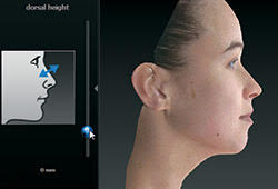 VECTRA Complete 3D Facial Imaging Solution Beverly Hills, CA