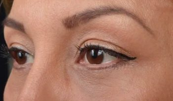 Lower eyelid blepharoplasty with fat repositioning, CO2 laser