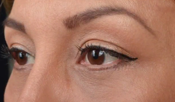 Lower eyelid blepharoplasty with fat repositioning, CO2 laser Beverly Hills, CA