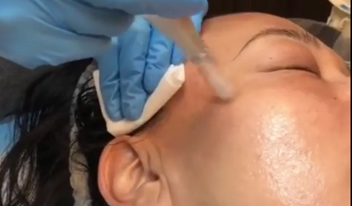 Microneedling with Hyaluronic Acid Beverly Hills, CA
