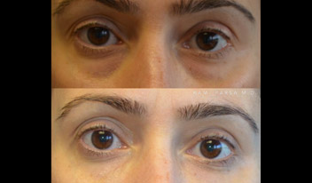 Fillers for lower eyelid hollows and dark circles Beverly Hills, CA