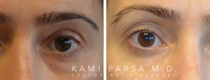 Facial Fillers and Botox Before/After Photos | Kami Parsa MD Los Angeles, Beverly Hills