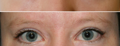 Ptosis surgery Before/After Photos | Kami Parsa MD Los Angeles, Beverly Hills