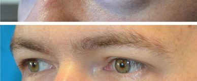 Under Eyelid Blepharoplasty Before & After Photo Beverly Hills, CA