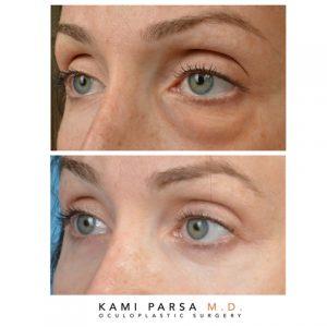 Lower eyelid blepharoplasty with co2 laser resurfacing