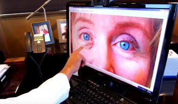 Skin Graft Eyelid Revision
