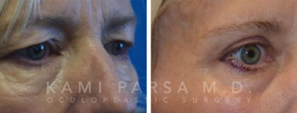 Fat injection Before/After Photos | Kami Parsa MD Los Angeles, Beverly Hills