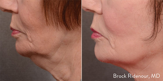 Beverly Hills Forma Skin Collagen Stimulation Treatments