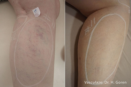 Vasculaze Before After