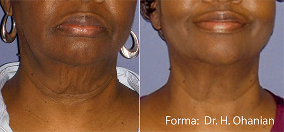 Collagen treatment - before and after