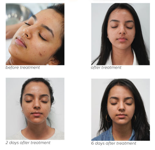 photos of a patient before a chemical peel and right after, after 2 days and after 6 days from the treatment