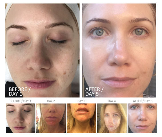 photos of a patient before a chemical peel and right after 1, 2, 3, 4 and 5 days from the treatment