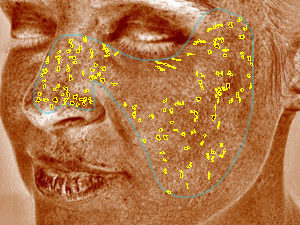 VISIA® Skin Analysis System test result showing spots
