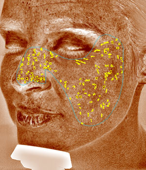 VISIA® Skin Analysis System test result showing brown spots