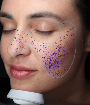 VISIA® Skin Analysis System test result showing pores