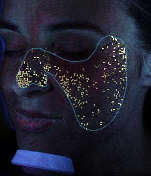 VISIA® Skin Analysis System test result showing porphyrins