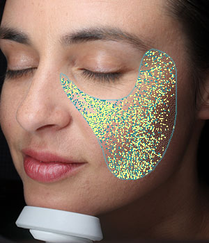 VISIA® Skin Analysis System test result showing texture
