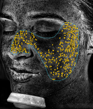 VISIA® Skin Analysis System test result showing uv spots