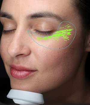 VISIA® Skin Analysis System test result showing wrinkles