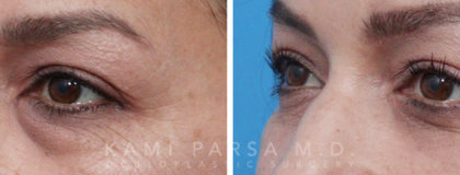 Lower eyelid surgery Before/After Photos | Kami Parsa MD Los Angeles, Beverly Hills