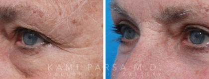 Quadfecta Lift Before/After Photos | Kami Parsa MD Los Angeles, Beverly Hills